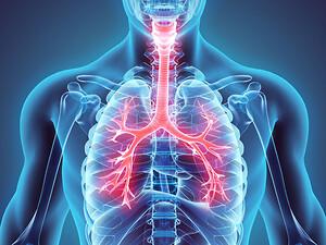 Influensastudie, befuktning, vätning,