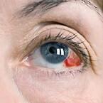 Øjenskade ved trykluft