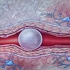 Trykluft i blodbanen